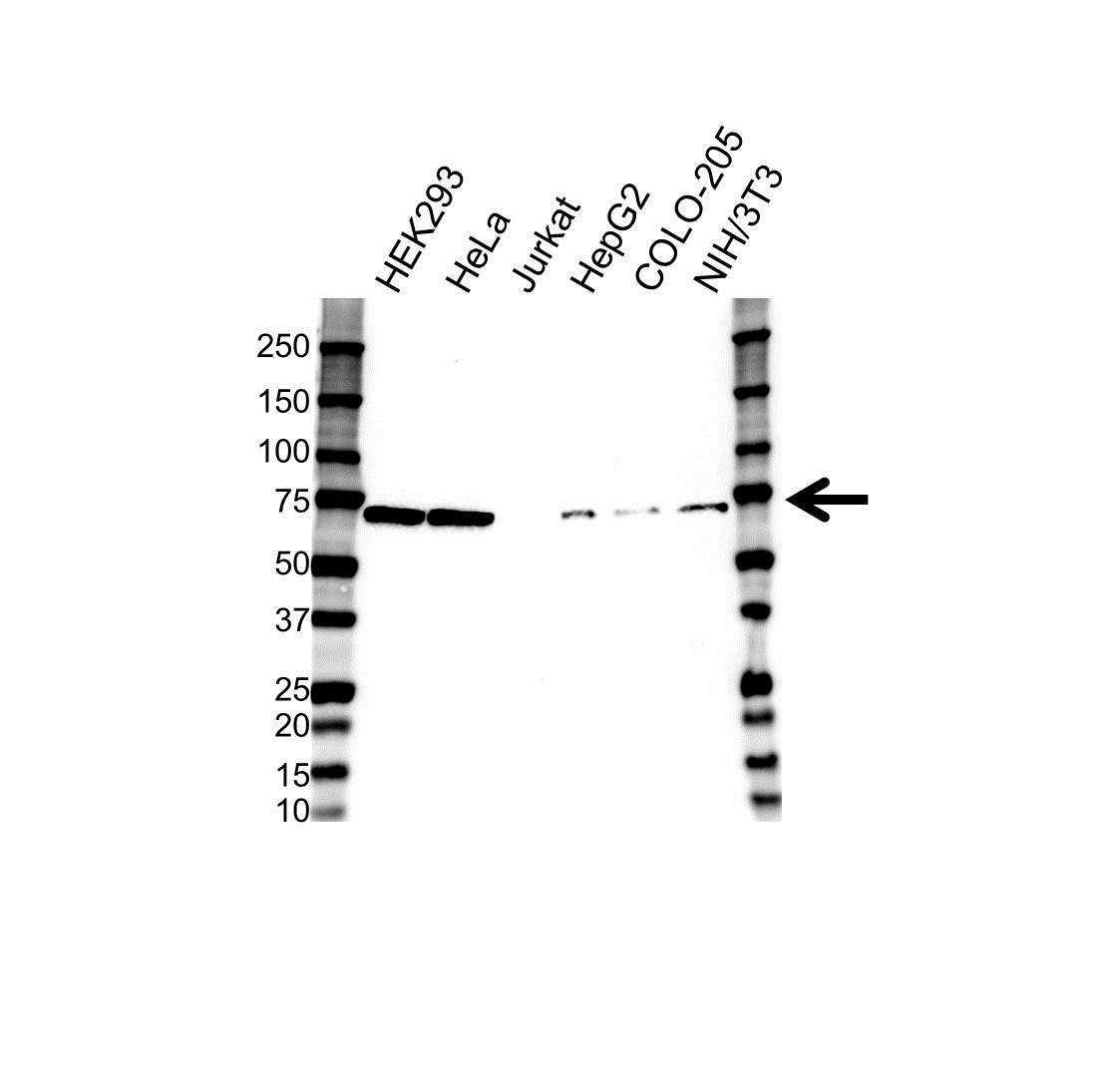 Anti LIMK2 Antibody (PrecisionAb Polyclonal Antibody) gallery image 1