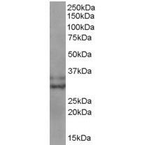Anti Human Livin (C-Terminal) Antibody thumbnail image 2
