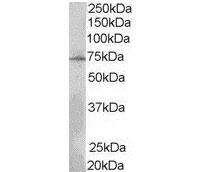 Anti Human Lnk (N-Terminal) Antibody thumbnail image 2