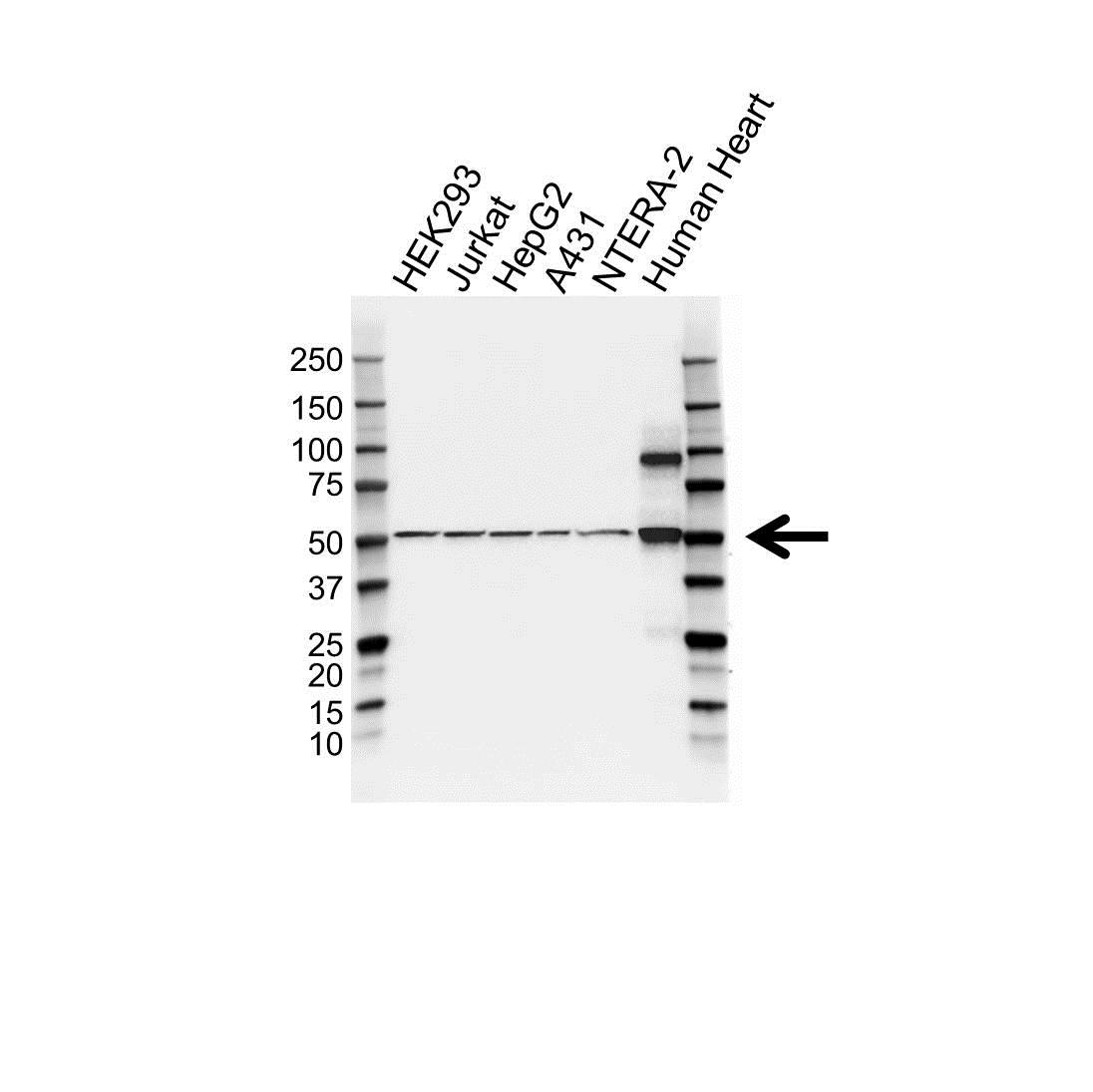 Anti LOXL1 Antibody (PrecisionAb™ Polyclonal Antibody) gallery image 1