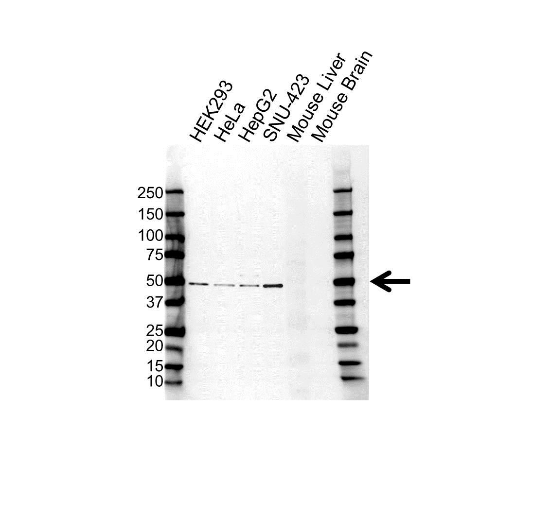 Anti Lymphotoxin Beta Receptor Antibody (PrecisionAb Polyclonal Antibody) gallery image 1