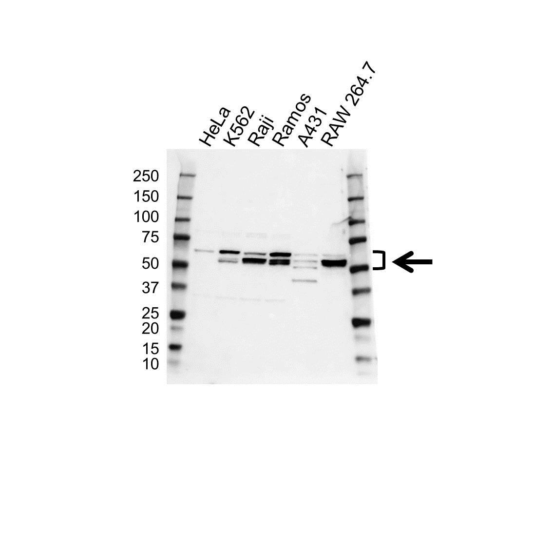 Anti Lyn Antibody (PrecisionAb Polyclonal Antibody) gallery image 1