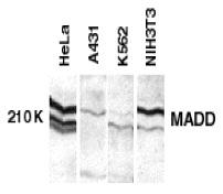 Anti MADD Antibody thumbnail image 1