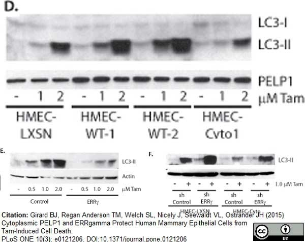 Anti Human MAP1LC3A/B (N-Terminal) Antibody gallery image 3