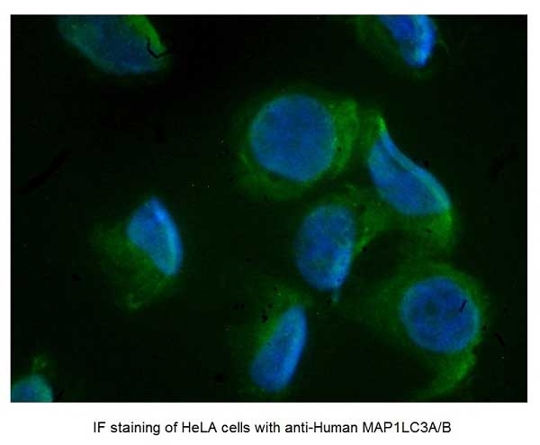 Anti Human MAP1LC3A/B (N-Terminal) Antibody gallery image 4