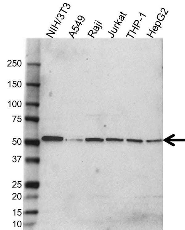 Anti MAP3K8 Antibody (PrecisionAb Polyclonal Antibody) gallery image 1