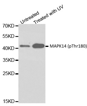 Anti MAPK14 (pThr180) Antibody thumbnail image 1