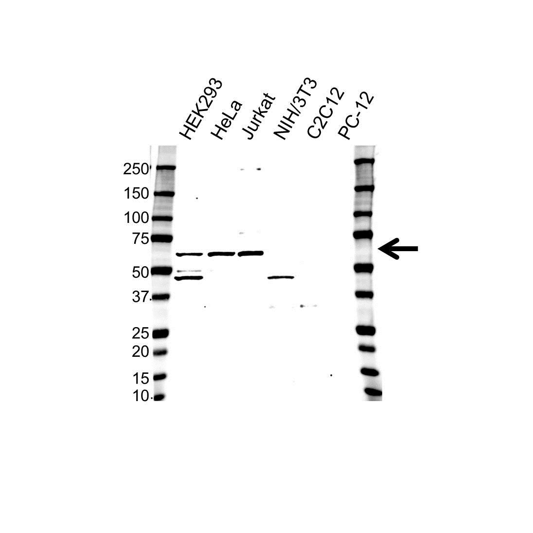 Anti MAPK9 / JNK2 Antibody (PrecisionAb™ Polyclonal Antibody) gallery image 1