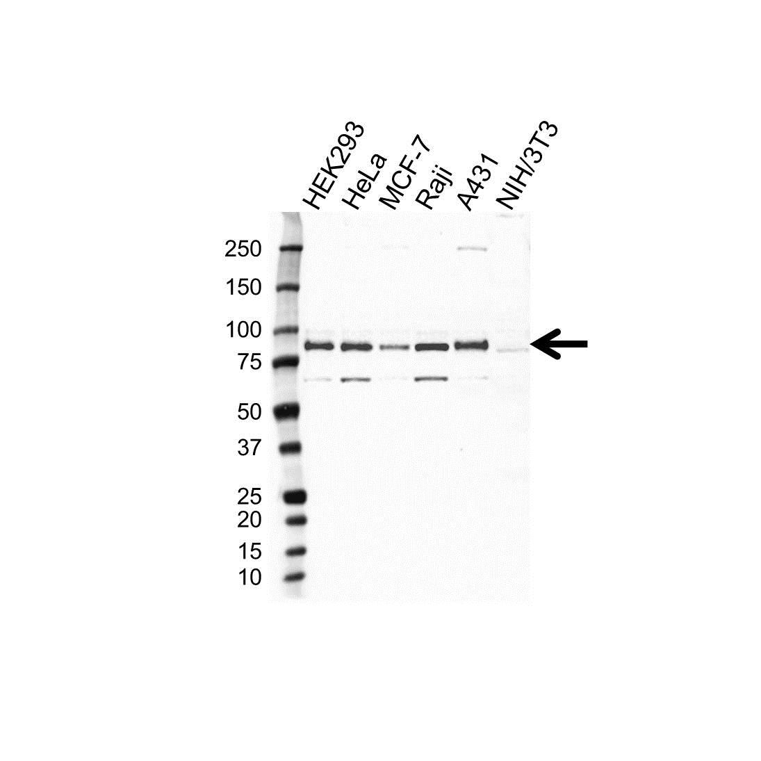 Anti MARCKS Antibody (PrecisionAb™ Polyclonal Antibody) gallery image 1