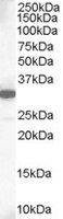 Anti Human Mcl-1 (C-Terminal) Antibody gallery image 1