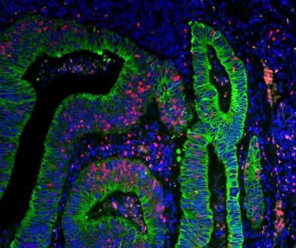 Anti MCM2 Antibody thumbnail image 7