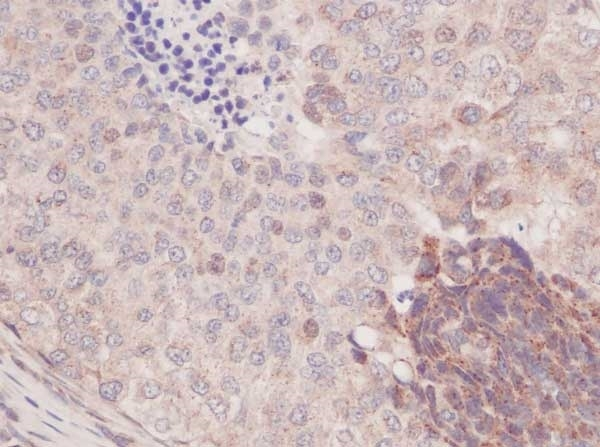 Anti Human MCP-1 Antibody thumbnail image 2