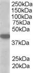 Anti Human MCT2 Antibody gallery image 1