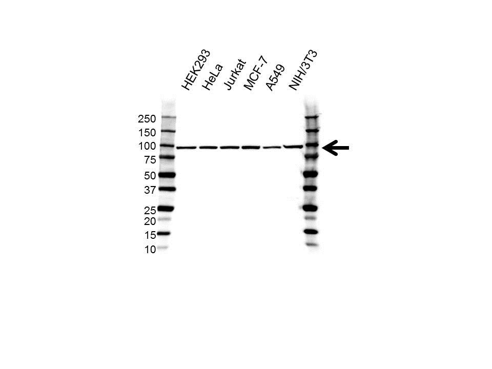 Anti MED17 Antibody (PrecisionAb Polyclonal Antibody) gallery image 1