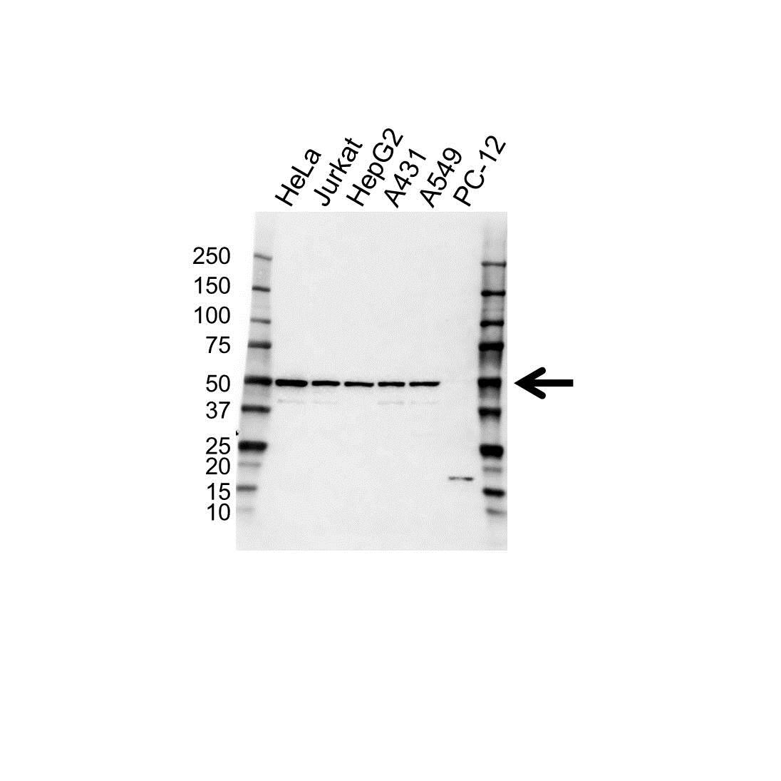 Anti MEK 2 Antibody (PrecisionAb™ Polyclonal Antibody) gallery image 1