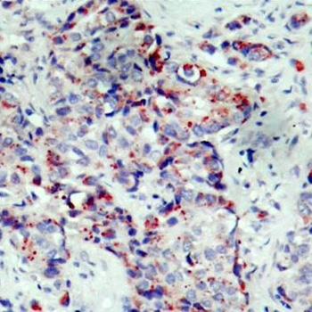 Anti MEK 4 (pSer80) Antibody thumbnail image 2