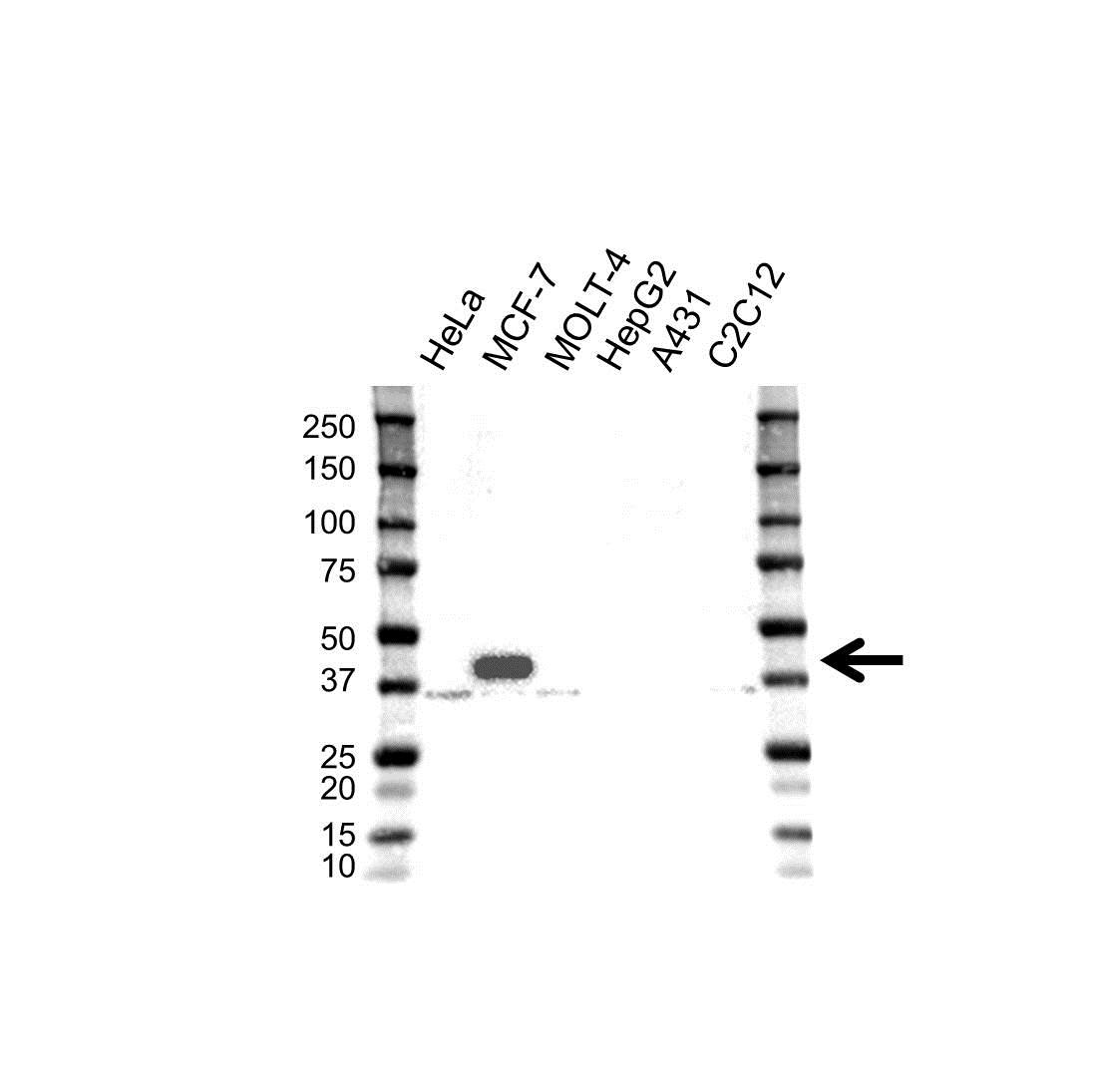 Anti MICA Antibody (PrecisionAb™ Polyclonal Antibody) gallery image 1