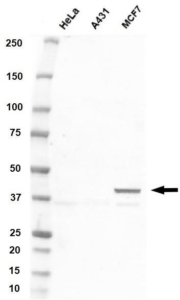 Anti MICA Antibody (PrecisionAb Polyclonal Antibody) gallery image 1