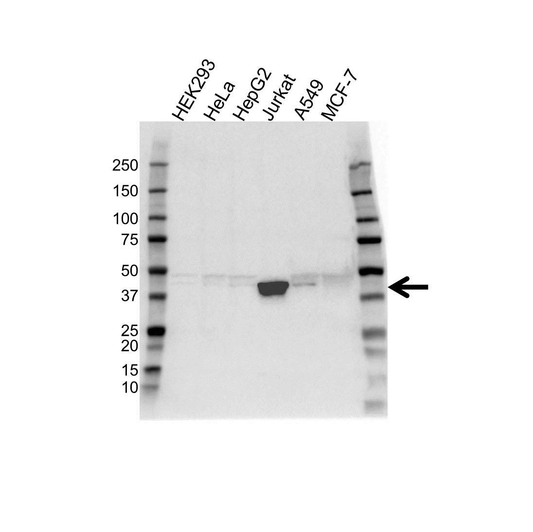 Anti Micb Antibody (PrecisionAb Polyclonal Antibody) gallery image 1