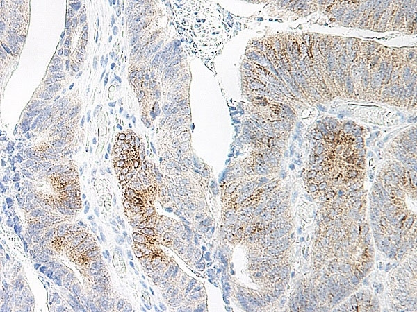 Anti Human MIP-3 Alpha Antibody thumbnail image 1