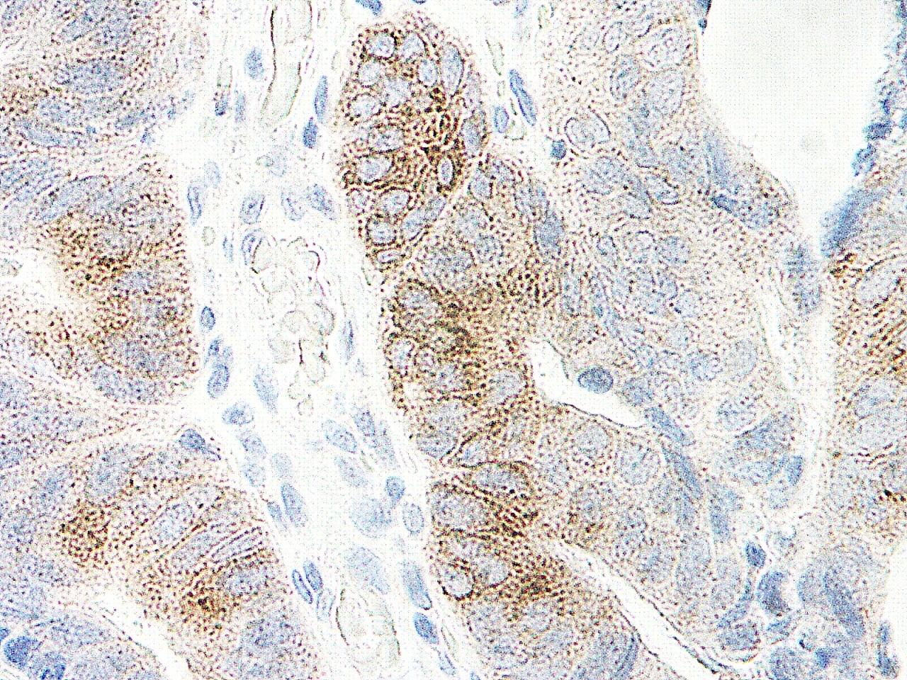 Anti Human MIP-3 Alpha Antibody thumbnail image 2