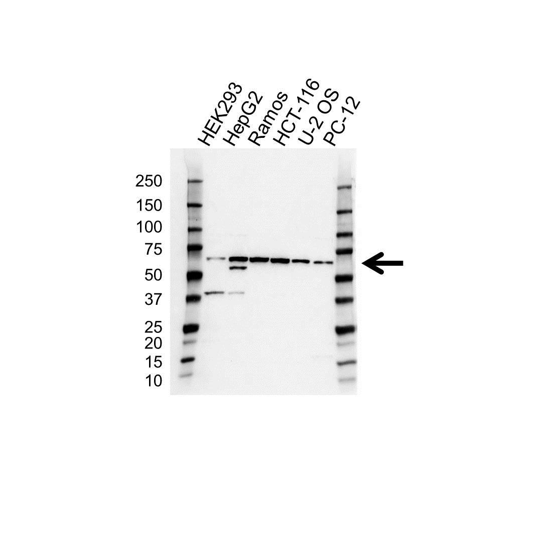 Anti MMP-3 Antibody (PrecisionAb Polyclonal Antibody) gallery image 1