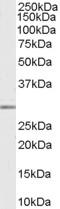 Anti Human MMP-7 Antibody gallery image 1