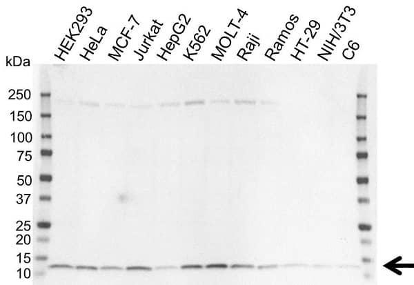 Anti MPS1 Antibody (PrecisionAb Polyclonal Antibody) gallery image 1