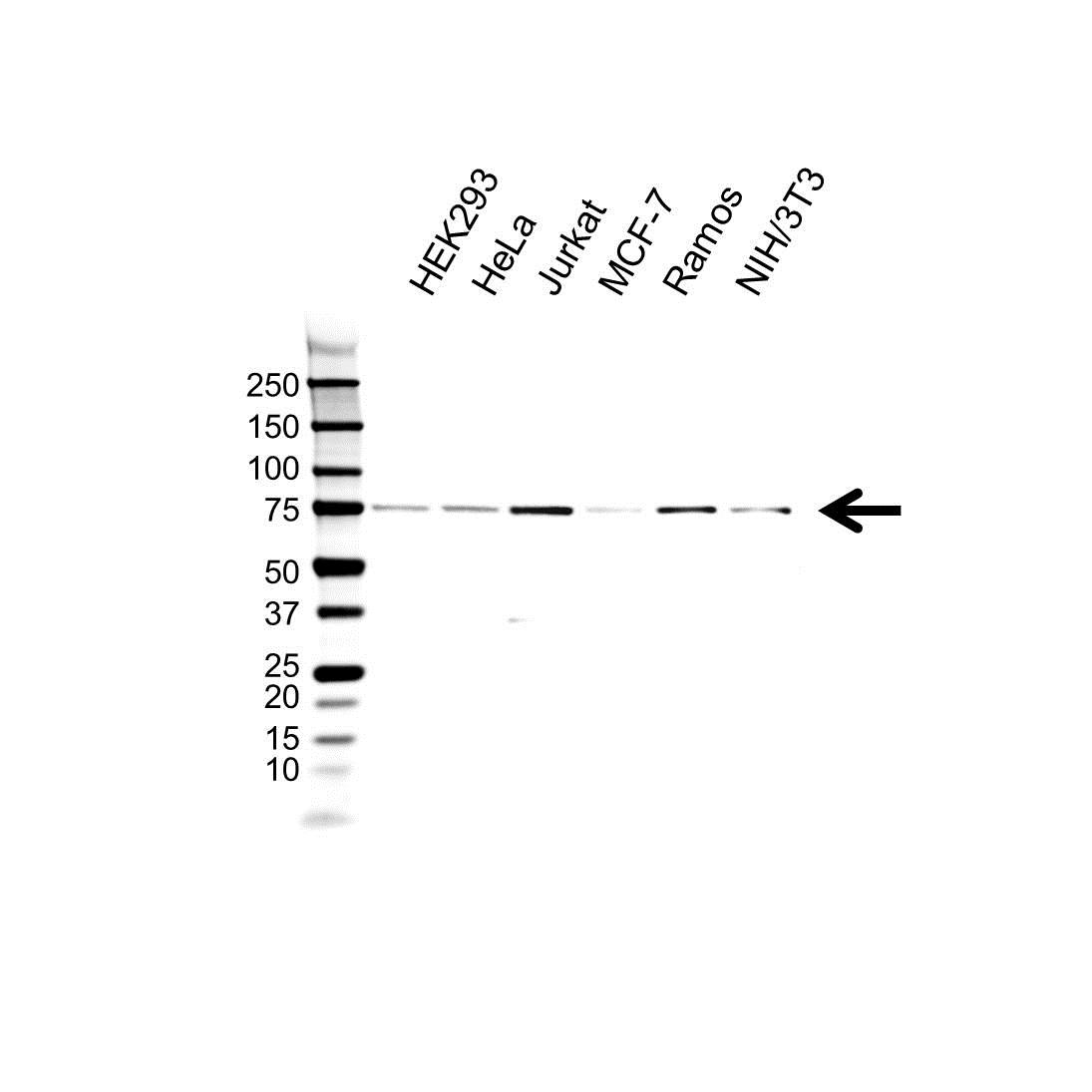Anti MTA1 Antibody (PrecisionAb Polyclonal Antibody) gallery image 1