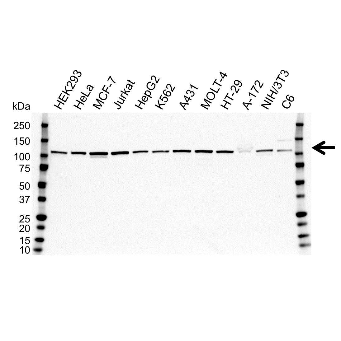 Anti MTHFD1L Antibody (PrecisionAb™ Polyclonal Antibody) gallery image 1