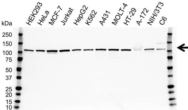 Anti MTHFD1L Antibody (PrecisionAb Polyclonal Antibody) gallery image 1