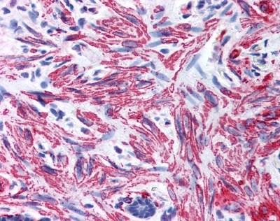 Anti Human Myosin Regulatory Light Chain Antibody gallery image 1