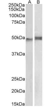 Anti Human NCF1 Antibody thumbnail image 1