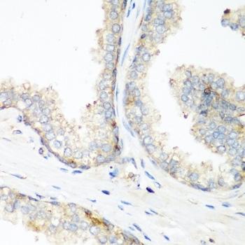 Anti NEDD4 Antibody thumbnail image 2