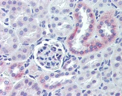 Anti Human Nestin Antibody thumbnail image 1