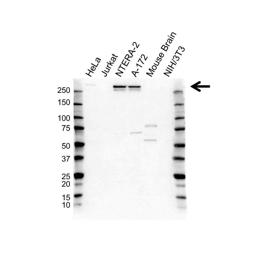 Anti Nestin Antibody (PrecisionAb Polyclonal Antibody) gallery image 1