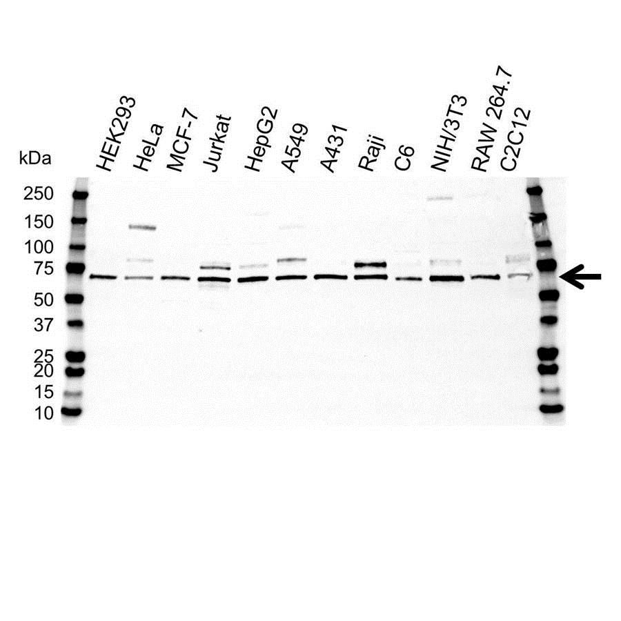Anti NFkB p65 Antibody (PrecisionAb™ Polyclonal Antibody) thumbnail image 1