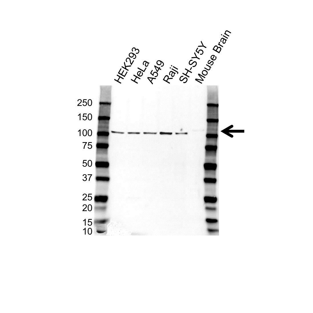 Anti NMDAR1/NR1 Antibody (PrecisionAb Polyclonal Antibody) gallery image 1