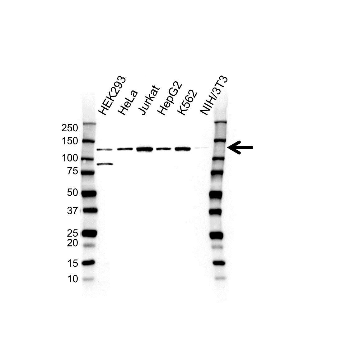 Anti NOLC1 Antibody (PrecisionAb Polyclonal Antibody) gallery image 1