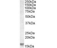Anti Human Noxa Antibody gallery image 1