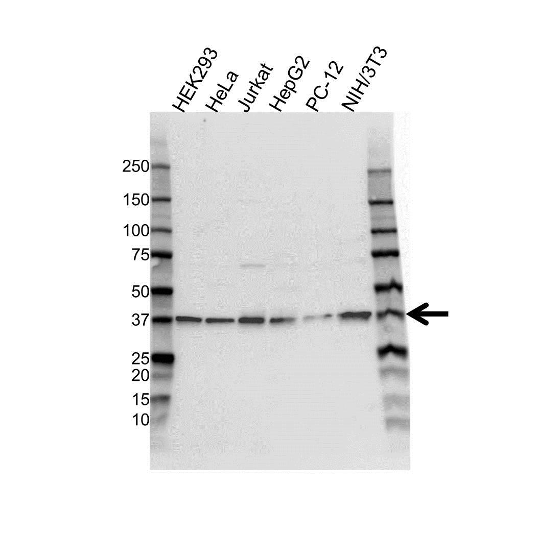 Anti NPM Antibody (PrecisionAb™ Polyclonal Antibody) gallery image 1