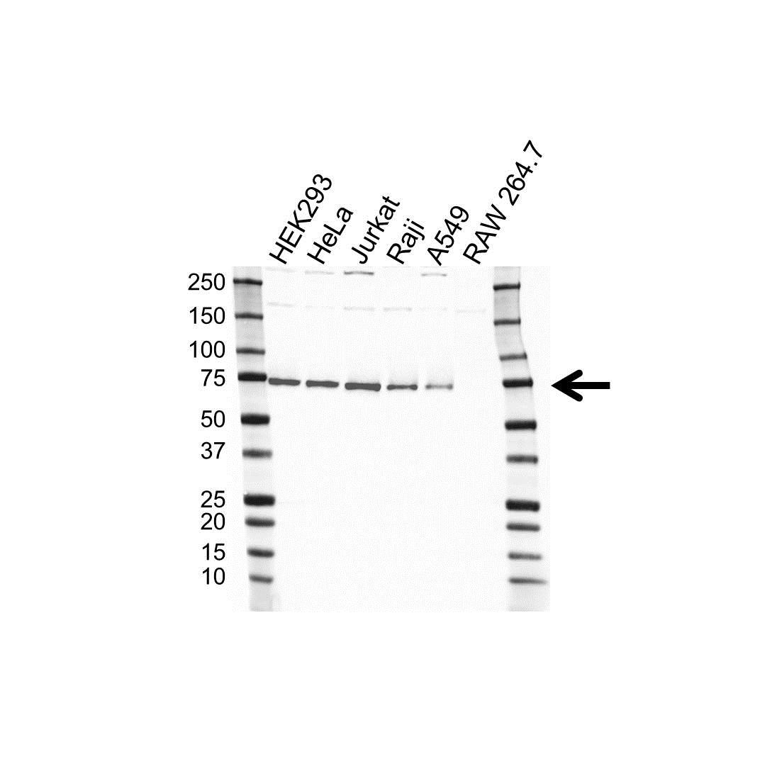 Anti NXF1 Antibody (PrecisionAb™ Polyclonal Antibody) gallery image 1