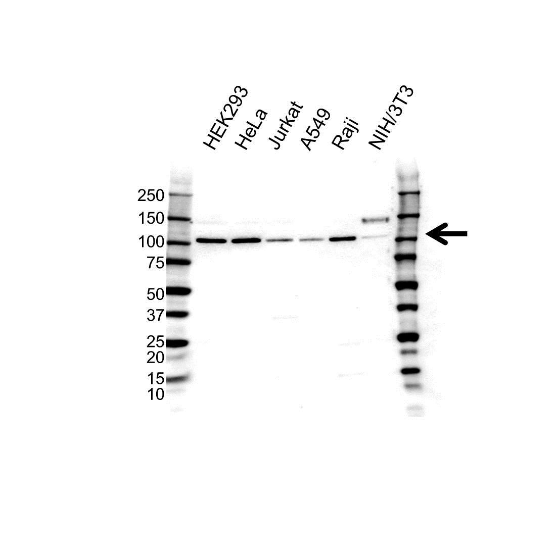 Anti Oncostatin M Receptor Antibody (PrecisionAb Polyclonal Antibody) gallery image 1