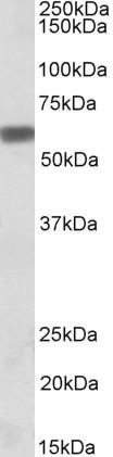 Anti Human Osteopontin (C-Terminal) Antibody gallery image 1