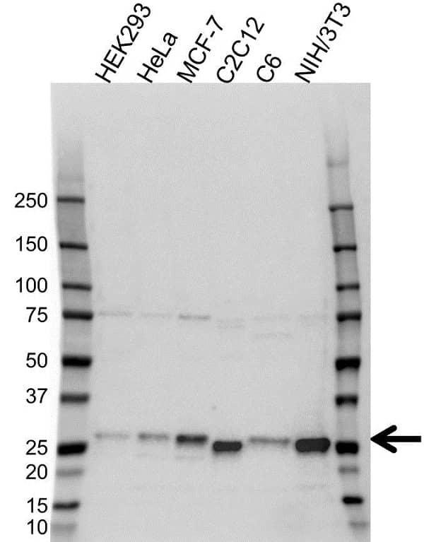 Anti p27/Kip1 Antibody (PrecisionAb Polyclonal Antibody) gallery image 1