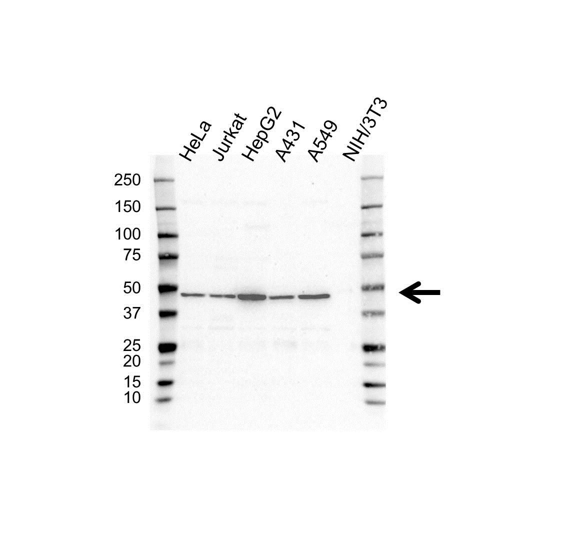 Anti p43 Antibody (PrecisionAb Polyclonal Antibody) gallery image 1