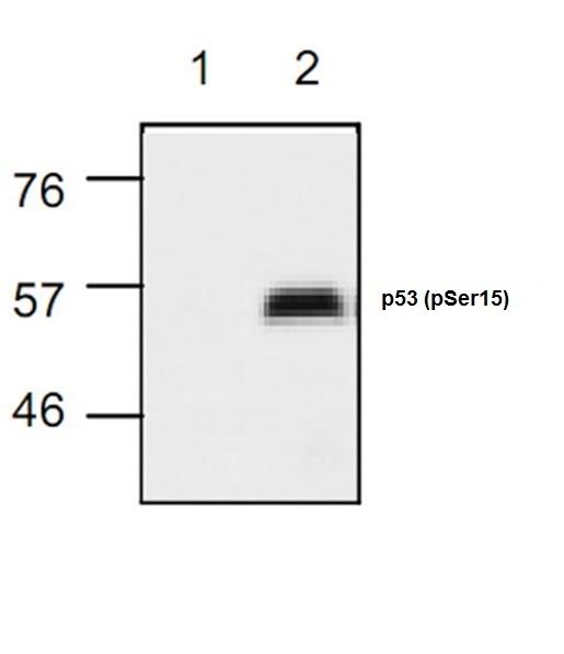 Anti p53 (pSer15) Antibody - 50 µg gallery image 1