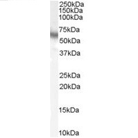Anti Human p70S6K (C-Terminal) Antibody thumbnail image 2