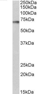 Anti Human p70S6K (C-Terminal) Antibody thumbnail image 3