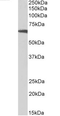Anti Human p70S6K (C-Terminal) Antibody thumbnail image 4